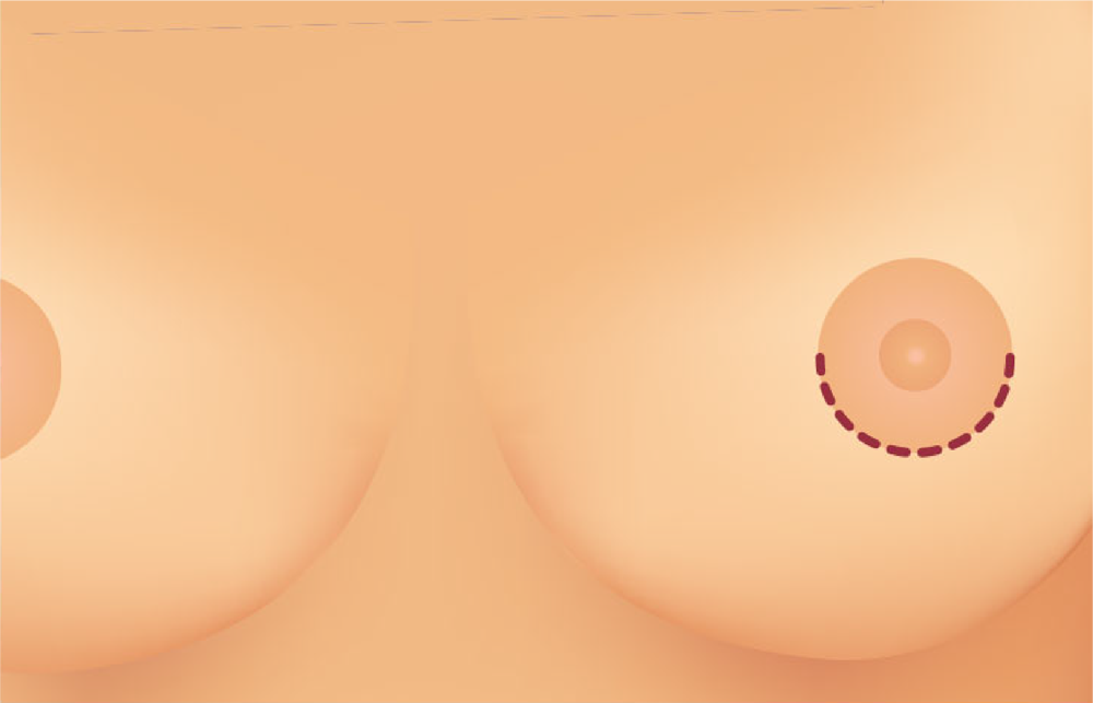 Breast Augmentation Philippines With Breast Implants Breast