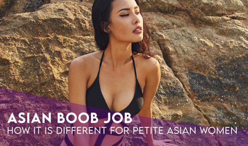Breast Augmentation Among Asian Women
