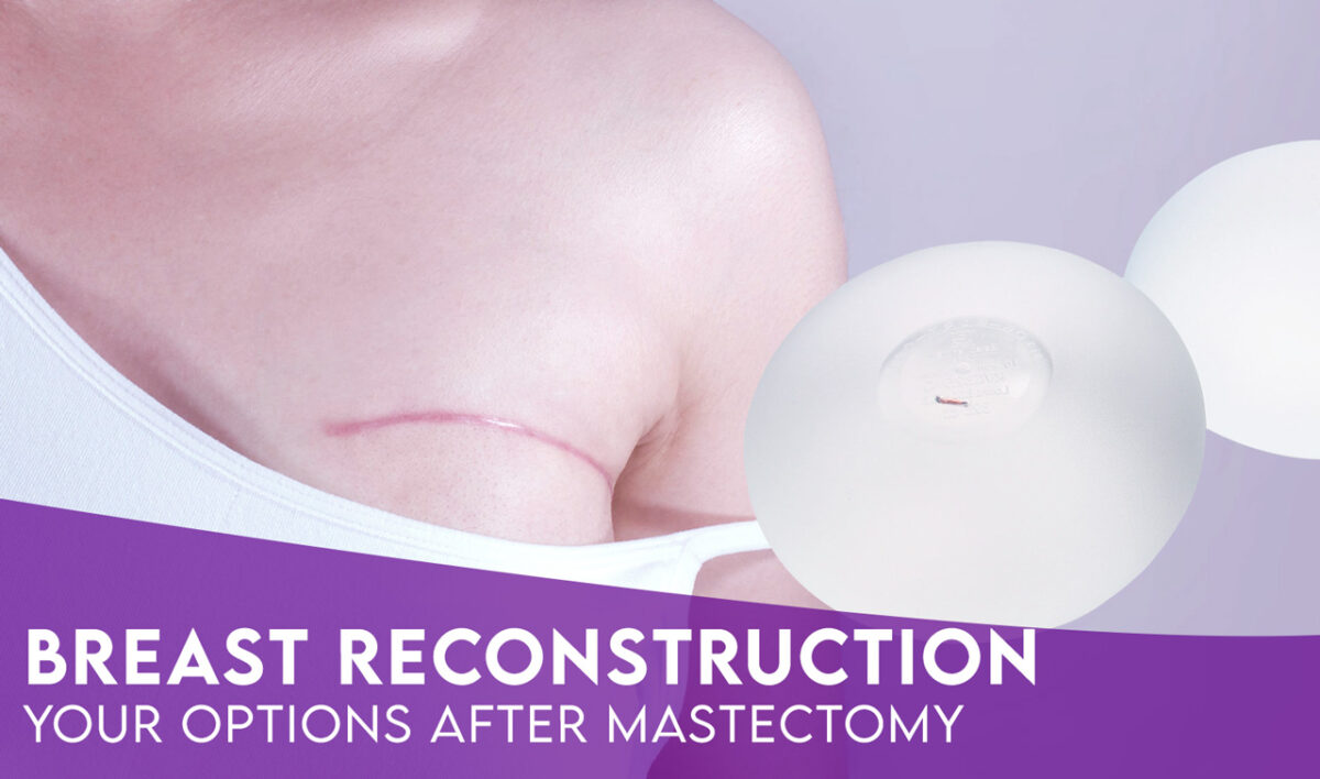 Breast Reconstruction After Mastectomy: Options for the Best Surgical Procedure
